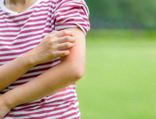 Allergie cutanée : symptômes, causes et traitements