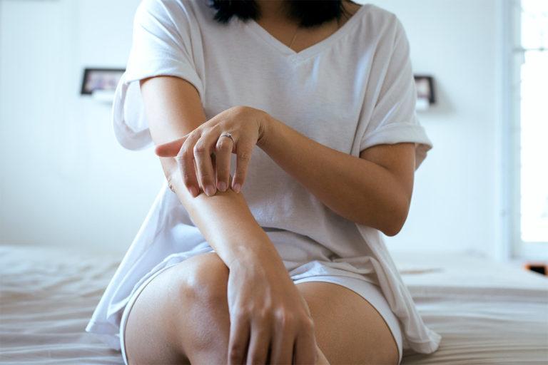 eczema dermatite atopique
