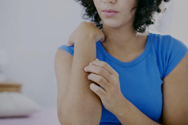 Urticaires et allergies