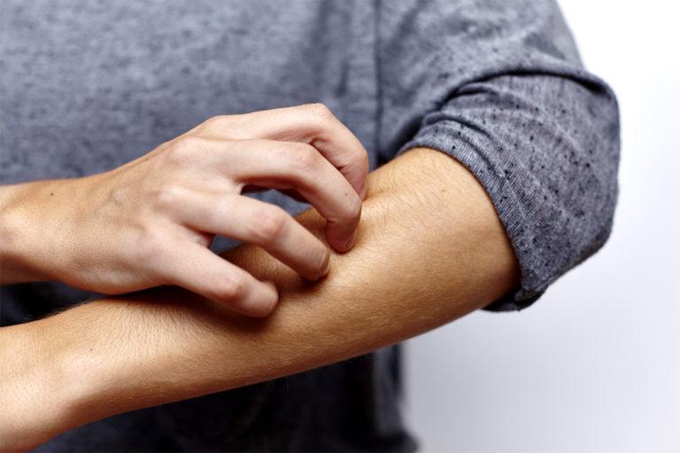 Psoriasis : comprendre et soulager