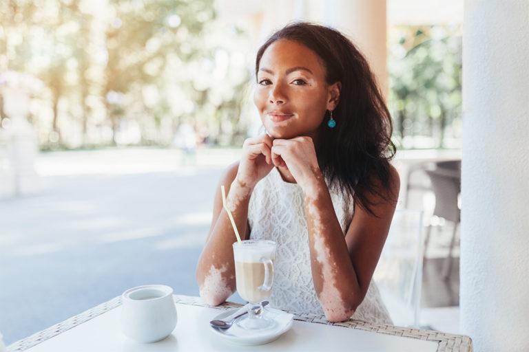 Vivre avec un vitiligo et le soigner